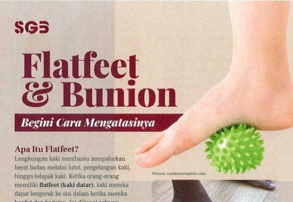 Flatfeet & Bunion – Begini Cara Mengatasinya