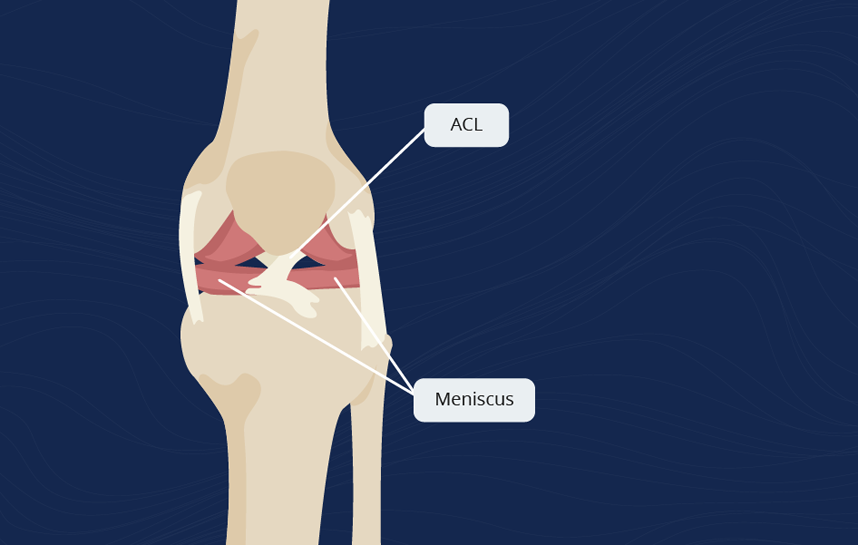 ACL and Meniscus