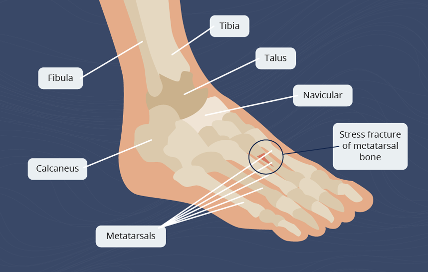 Stress fracture on foot
