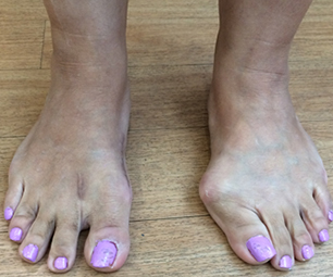 Bunion after Surgery
