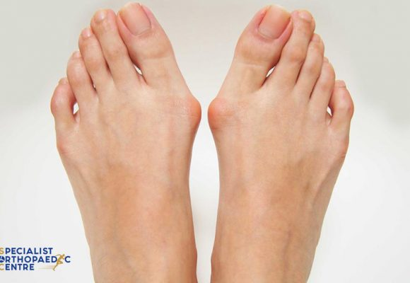 How Do I Tell The Difference Between Bunion And Gout?